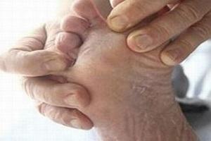 手足癣到底是什么疾病