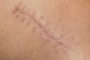 哪些因素会影响疤痕增生